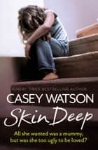 Skin Deep: All She Wanted Was a Mummy, But Was She Too Ugly to Be Loved? 電子書 by Casey Watson