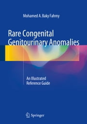 Rare Congenital Genitourinary Anomalies - An Illustrated Reference Guide ebook by Mohamed Fahmy