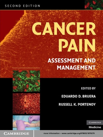 Cancer Pain - Assessment and Management ebook by