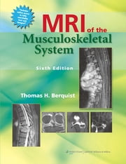 MRI of the Musculoskeletal System ebook by Thomas H. Berquist