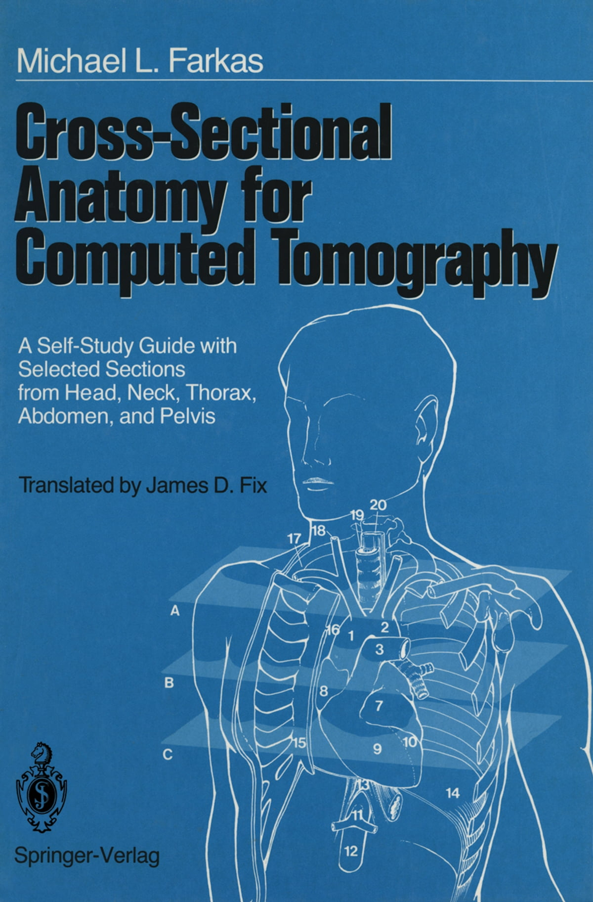 Cross Sectional Anatomy For Computed Tomography Ebook Von S Kubik