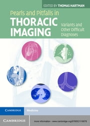 Pearls and Pitfalls in Thoracic Imaging - Variants and Other Difficult Diagnoses ebook by Thomas Hartman
