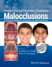 Recognizing and Correcting Developing Malocclusions - A Problem-Oriented Approach to Orthodontics ebook by Eustáquio A. Araújo,Peter H. Buschang