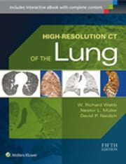 High-Resolution CT of the Lung ebook by W. Richard Webb,Nestor L. Muller,David P. Naidich