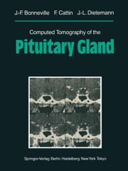 Computed Tomography of the Pituitary Gland - With a Chapter on Magnetic Resonance Imaging of the Sellar and Juxtasellar Region, By M. Mu Huo Teng and K. Sartor ebook by M. Mu Huo Teng,Jean-Francois Bonneville,F. Cattin,K. Sartor,Jean-Louis Dietemann