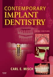 Contemporary Implant Dentistry ebook by Carl E. Misch
