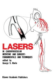 Lasers in Cardiovascular Medicine and Surgery: Fundamentals and Techniques ebook by George S. Abela