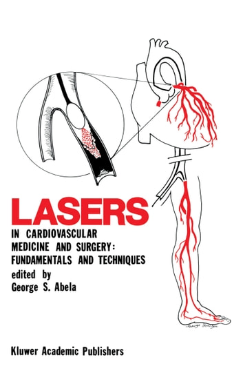 Lasers in Cardiovascular Medicine and Surgery: Fundamentals and Techniques ebook by