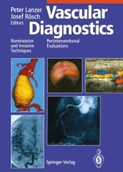 Vascular Diagnostics - Noninvasive and Invasive Techniques Periinterventional Evaluations ebook by Peter Lanzer, W.W. Parmley, G. Schettler,...