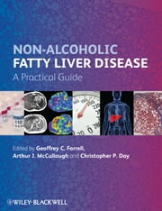Non-Alcoholic Fatty Liver Disease - A Practical Guide ebook by Geoffrey C. Farrell, Arthur J. McCullough, Christopher P. Day