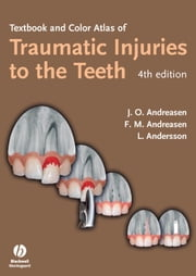 Textbook and Color Atlas of Traumatic Injuries to the Teeth ebook by