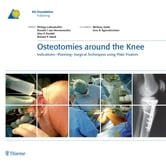 Osteotomies around the Knee - Indications-Planning-Surgical Techniques using Plate Fixators ebook by Philipp Lobenhoffer,Ronald J. van Heerwaarden,Alex E. Staubli