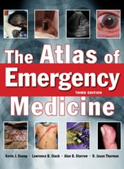 The Atlas of Emergency Medicine, Third Edition ebook by R. Jason Thurman,Kevin Knoop,Lawrence Stack,Alan Storrow