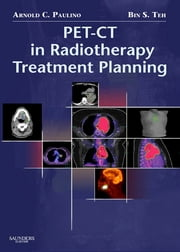 PET-CT in Radiotherapy Treatment Planning ebook by Arnold C. Paulino
