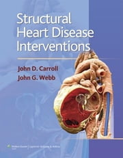 Structural Heart Disease Interventions ebook by John D. Carroll,John G. Webb