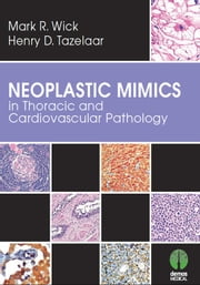Neoplastic Mimics in Thoracic and Cardiovascular Pathology ebook by Mark R. Wick, MD,Henry D. Tazelaar, MD