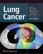 Lung Cancer ebook by Jack A. Roth,Waun Ki Hong,Ritsuko U. Komaki