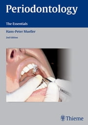 Periodontology - The Essentials ebook by Hans-Peter Mueller