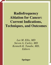 Radiofrequency Ablation for Cancer - Current Indications, Techniques, and Outcomes ebook by Lee M. Ellis,Steven A. Curley,Kenneth K. Tanabe