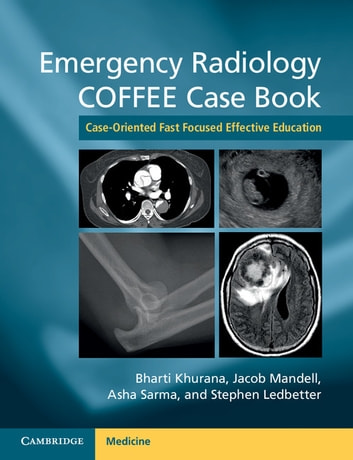 Emergency radiology coffee case book ebook by 9781316290651 emergency radiology coffee case book case oriented fast focused effective education ebook by fandeluxe Choice Image