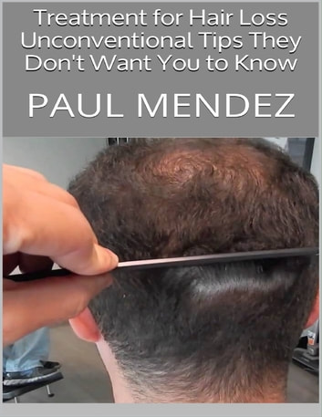 Treatment for Hair Loss: Unconventional Tips They Don't Want You to Know ebook by Paul Mendez