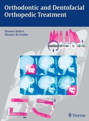 Orthodontic and Dentofacial Orthopedic Treatment ebook by Thomas Rakosi, Thomas M. Graber