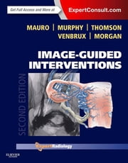 Image-Guided Interventions E-Book - Expert Radiology Series ebook by Matthew A. Mauro, MD, FACR,Kieran P.J. Murphy, MB, FRCPC, FSIR,Kenneth R. Thomson, MD, FRANZCR,Anthony C. Venbrux, MD,Robert A. Morgan, MBChB, MRCP, FRCR, EBIR