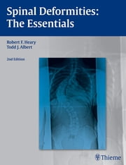 Spinal Deformities - The Essentials ebook by Robert F. Heary,Todd J. Albert