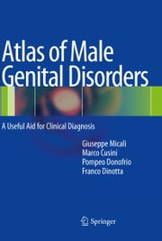 Atlas of Male Genital Disorders - A Useful Aid for Clinical Diagnosis ebook by Giuseppe Micali,Marco Cusini,Pompeo Donofrio,Franco Dinotta