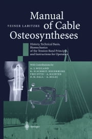 Manual of Cable Osteosyntheses - History, Technical Basis, Biomechanics of the Tension Band Principle, and Instructions for Operation ebook by A.J. Weiland,Reiner Labitzke,K.-P. Schmit-Neuerburg,F. Otto,A. Richter,D.M. Dall,A. Miles