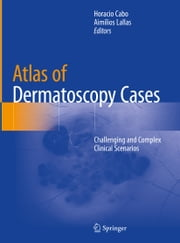 Atlas of Dermatoscopy Cases - Challenging and Complex Clinical Scenarios ebook by Horacio Cabo, Aimilios Lallas
