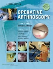 Operative Arthroscopy ebook by Don Johnson, Ned Annuziato Amendola, F. Alan Barber,...