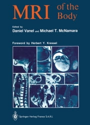 MRI of the Body ebook by Daniel Vanel,Susanne Assenat,Herbert Y. Kressel,Michael T. McNamara
