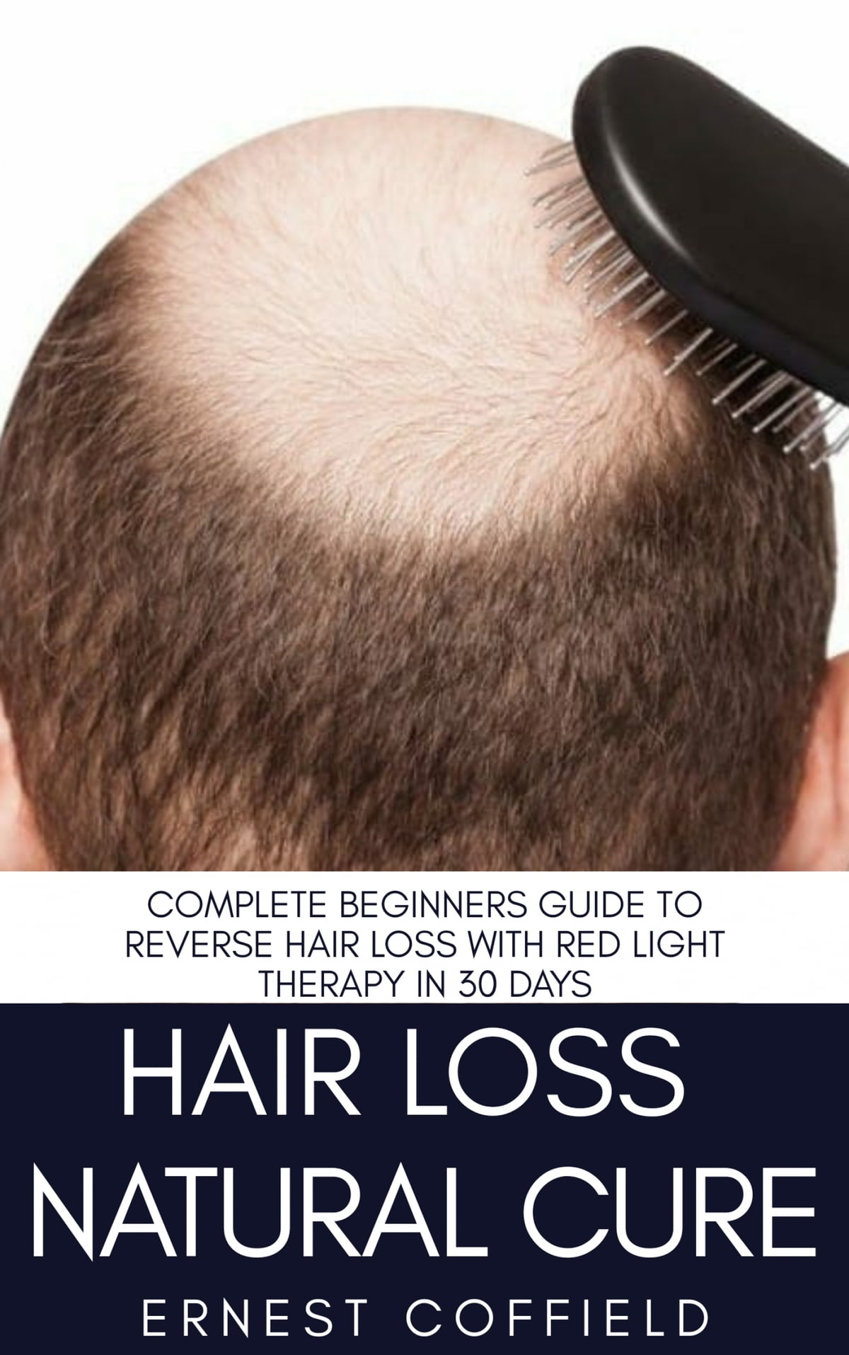 Hair Loss Natural Cure Ebook By Ernest Coffield 6610000110063