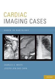 Cardiac Imaging Cases ebook by Charles White,Joseph Chen
