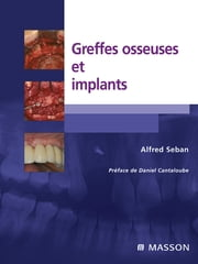Greffes osseuses et implants ebook by Alfred Seban