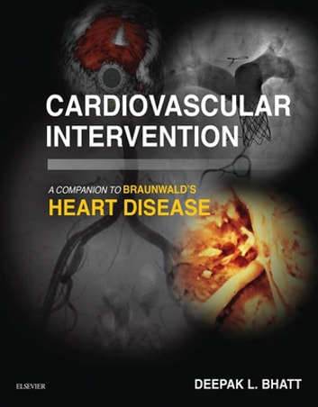 Cardiovascular Intervention: A Companion to Braunwald's Heart Disease E-Book ebook by Deepak L. Bhatt, MD, MPH, FACC, FAHA, FSCAI, FESC