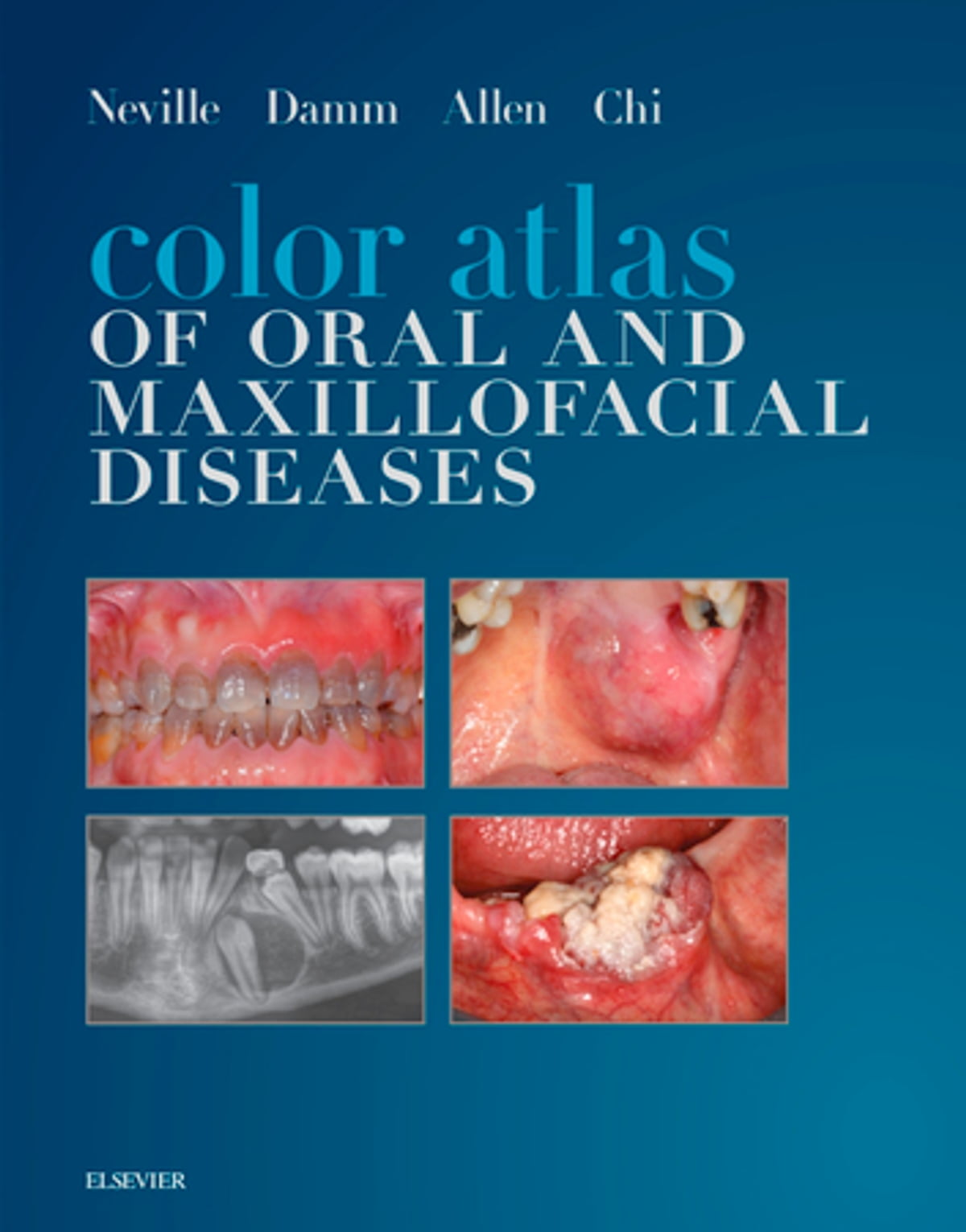 Management Of Dental Infections By Medical Practitioners