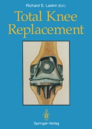 Total Knee Replacement ebook by Barry C. Kleeman,Richard S. Laskin,Andrew Turtel