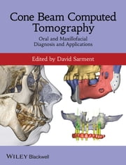 Cone Beam Computed Tomography - Oral and Maxillofacial Diagnosis and Applications ebook by David Sarment