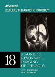 Magnetic Resonance Imaging of the Body - Advanced Exercises in Diagnostic Radiology Series ebook by Jeffrey C. Weinreb,Helen C. Redman