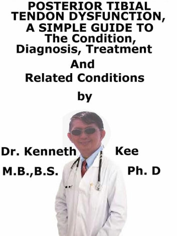 Posterior Tibial Tendon Dysfunction, A Simple Guide To The Condition, Diagnosis, Treatment And Related Conditions ebook by Kenneth Kee