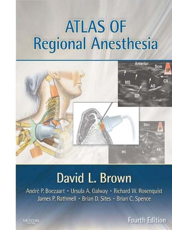 Atlas of Regional Anesthesia E-Book ebook by David L. Brown, MD