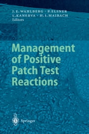 Management of Positive Patch Test Reactions ebook by Jan E. Wahlberg,Lasse Kanerva,Howard I. Maibach,peter elsner