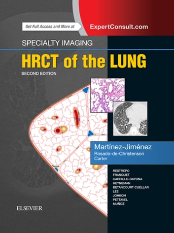 Specialty imaging hrct of the lung e book ebook by santiago specialty imaging hrct of the lung e book ebook by santiago martnez jimnez fandeluxe Choice Image