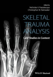 Skeletal Trauma Analysis - Case Studies in Context ebook by Nicholas V. Passalacqua,Christopher W. Rainwater