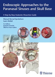 Endoscopic Approaches to the Paranasal Sinuses and Skull Base - A Step-by-Step Anatomic Dissection Guide ebook by Manuel Bernal-Sprekelsen, Isam Alobid, Joaquim Ensenat
