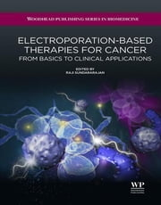 Electroporation-Based Therapies for Cancer - From Basics to Clinical Applications ebook by R. Sundararajan