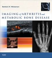 Imaging of Arthritis and Metabolic Bone Disease E-Book ebook by Barbara N. W. Weissman, MD