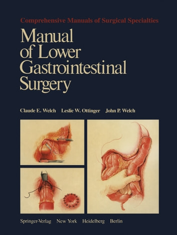 Manual of Lower Gastrointestinal Surgery ebook by Claude E. Welch,Leslie W. Ottinger,John P. Welch